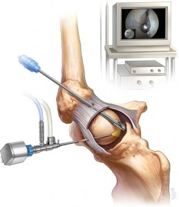 hip-arthroscopy-4